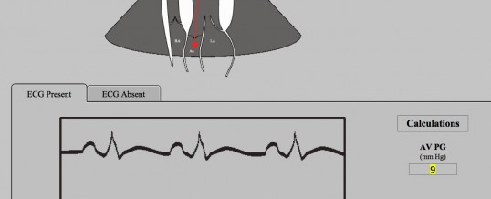 Aortic Outflow Spectral Measurement